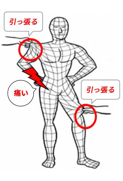 筋膜イメージ画像